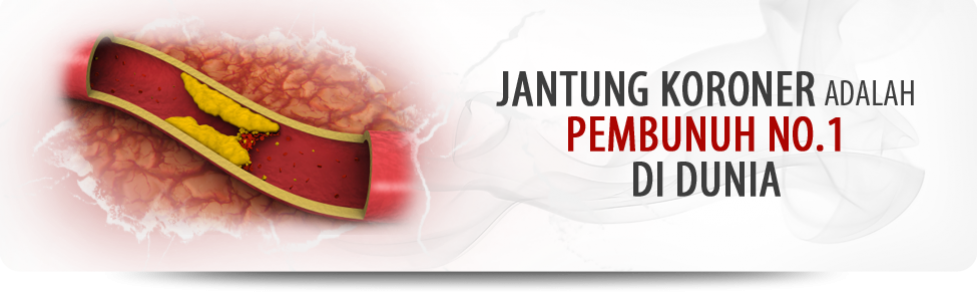jantung koroner adalah pembunuh no 1 di dunia