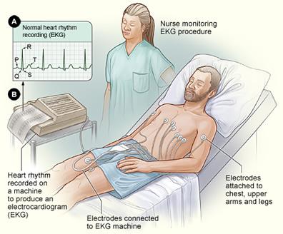 EKG sebagai Pemeriksaan Jantung Dasar