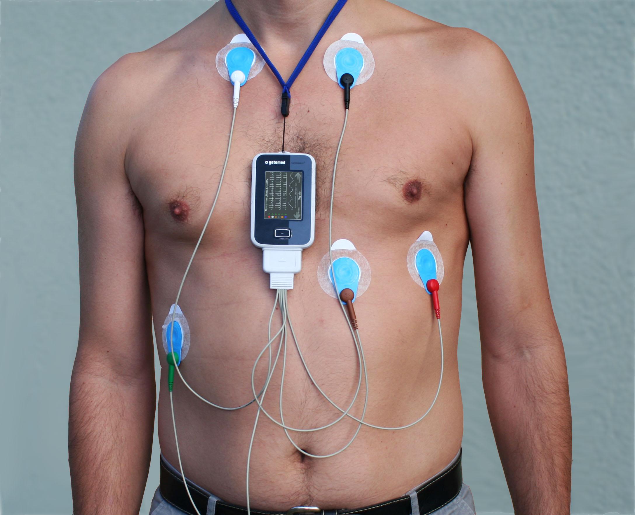 Holter EKG Untuk Pemeriksaan Gangguan Irama Jantung (bag. 1)